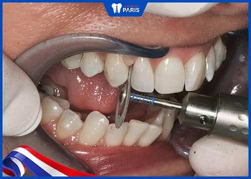 Cắt kẽ răng là gì?