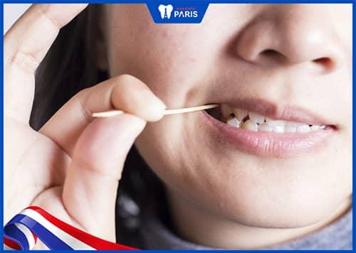 Hướng dẫn xỉa răng bằng tăm tre đúng cách ít ảnh hưởng nhất