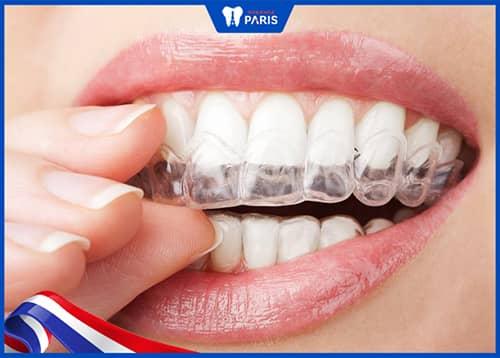 Làm sao để niềng răng bọc sứ an toàn nhất?