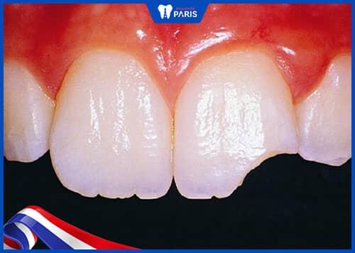 Người bệnh bọc răng sứ do bệnh lý