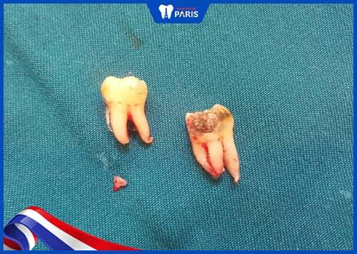Nhổ răng khôn còn sót chân răng có sao không