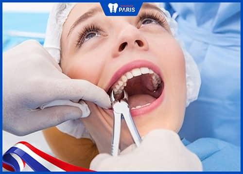 Nhổ răng số 7 có nguy hiểm không?