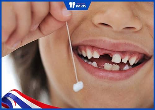 Nhổ răng sữa đầu tiên xong nên làm gì