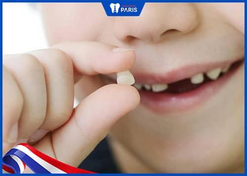 Những ảnh hưởng khi nhổ răng sữa sớm