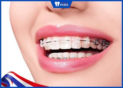 Niềng răng chữa cười hở lợi