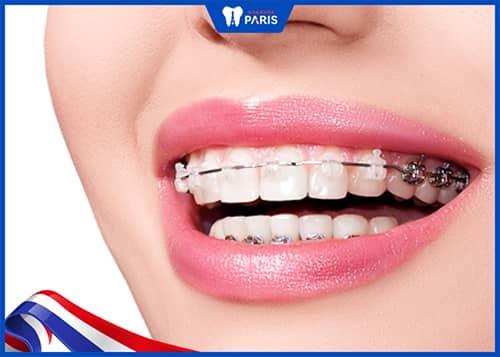 quãng đường di chuyển của răng quyết định bọc răng sứ niềng răng được hay không