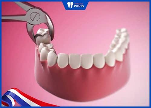 Nhổ răng số 7 có đau không?