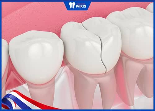 Răng sứ bị hư hỏng khi niềng răng đã bọc sứ