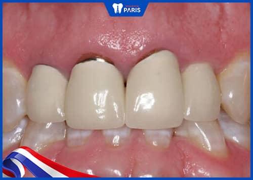 Răng sứ bị kéo bật ra ngoài khi niềng răng đã bọc sứ
