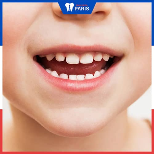 Răng sữa chưa lung lay khi đến tuổi mọc răng vĩnh viễn