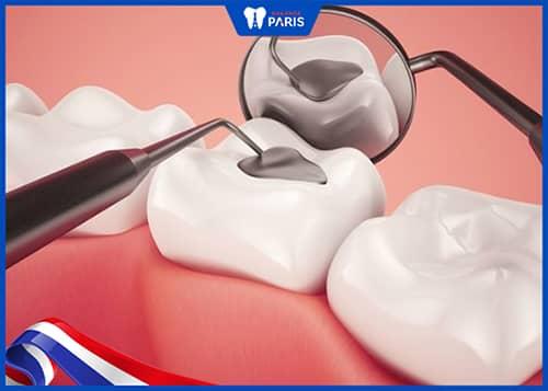 Trám răng khi bị thưa răng