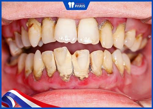 Viêm nha chu, áp xe răng khiến răng số 7 bị lung lay