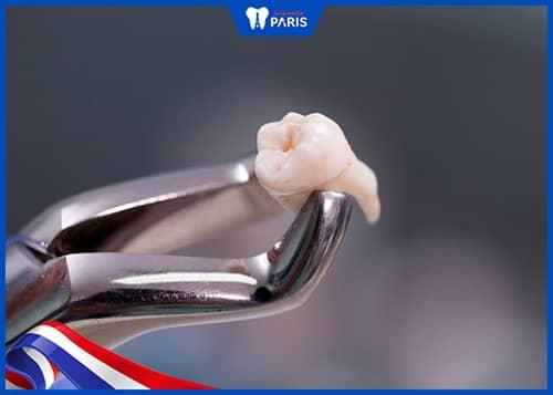 Xử lý răng số 7 bị lung lay bằng cách nhổ răng khôn