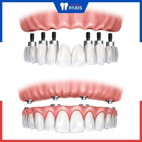 nên trồng răng implant all on 4 hay 6 hay 8