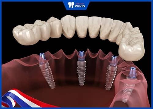cấy ghép implant all on là gì