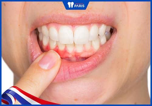 dùng tăm xỉa răng tăng khả năng nhiễm trùng