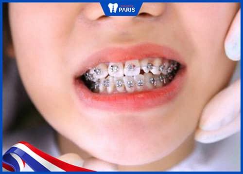 kết quả làm răng quyết định bọc răng sứ niềng răng được hay không