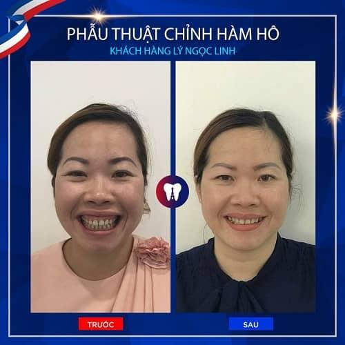 khách hàng phẫu thuật cười hở lợi