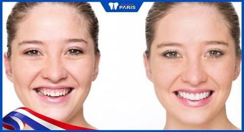 Phẫu thuật điều chỉnh cơ môi