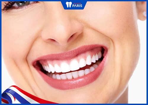 nâng cơ môi chữa cười hở lợi