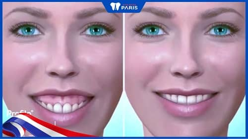 Phẫu thuật cười hở lợi do xương hàm