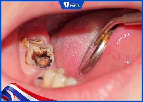 Nhổ răng số 7 Khi răng bị sâu, viêm nhiễm quá nặng