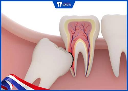 răng số 7 bị lung lay do răng số 8 mọc lệch