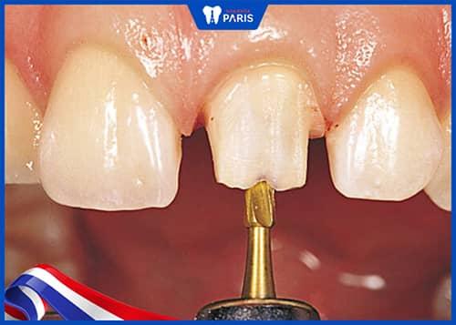 Tỉ lệ mô răng quyết định bọc răng sứ niềng răng được hay không