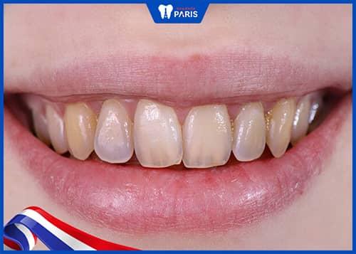 xỉa răng bằng tăm tre gây tổn hại cho men răng