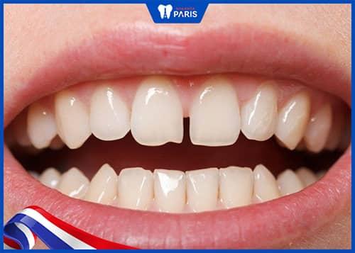 xỉa răng làm thưa răng