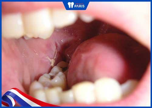 khâu vết thương sau khi nhổ răng để làm gì