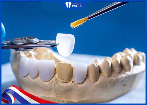 điều trị viêm tủy răng bao nhiêu tiền