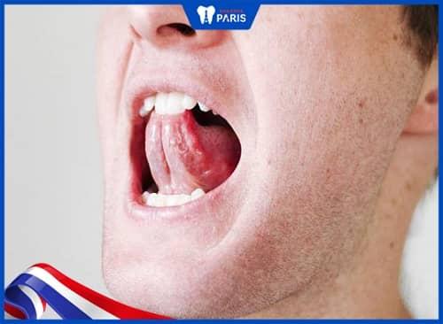 nguyên nhân đeo hàm duy trì răng vẫn chạy