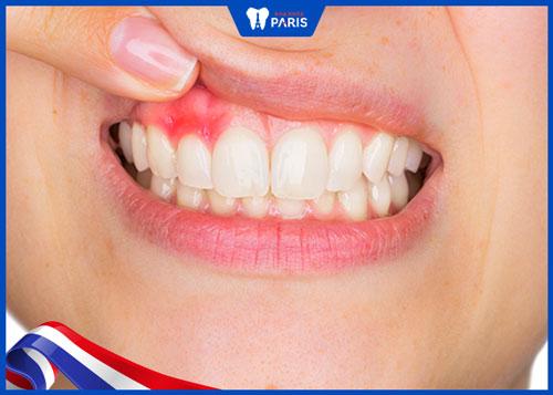 dấu hiệu nhiễm trùng sau nhổ răng