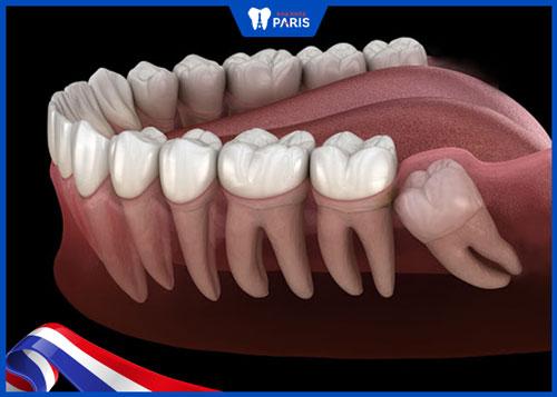 nhổ răng khôn có cần khâu không