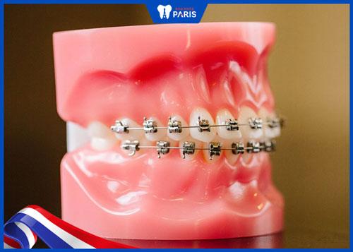 Niềng răng mắc cài kim loại mất bao lâu