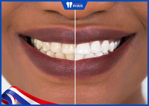 tẩy trắng răng để có nụ cười tỏa nắng