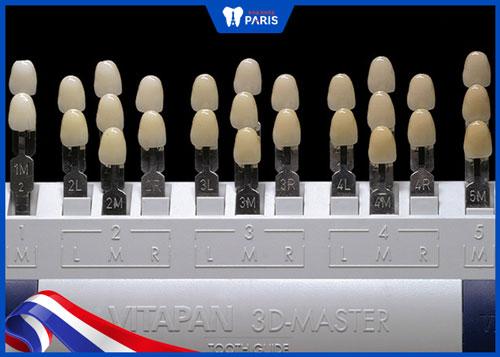 Bảng màu răng sứ Vita Master 3D