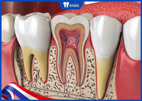 Biến chứng chạm vào dây thần kinh sau khi nhổ răng khôn