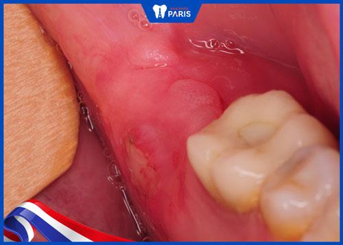 Biến chứng nhiễm trùng sau khi nhổ răng khôn