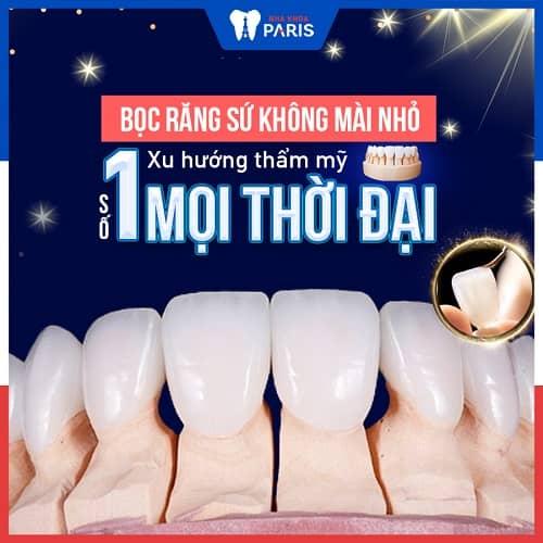 bọc răng sứ nếu bị sâu răng khi niềng