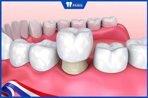 bọc răng bị vỡ