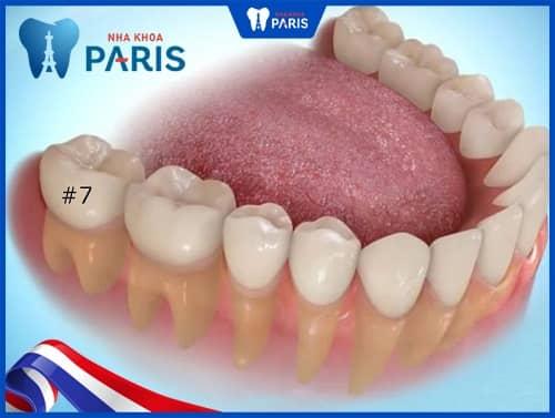 răng con người có mấy cái