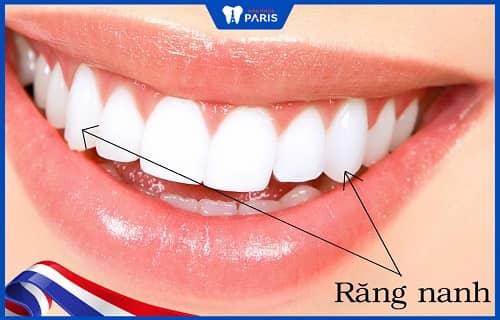 cấu tạo hàm răng người lớn