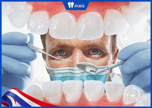 Niềng răng tại nhà không có bác sĩ hướng dẫn