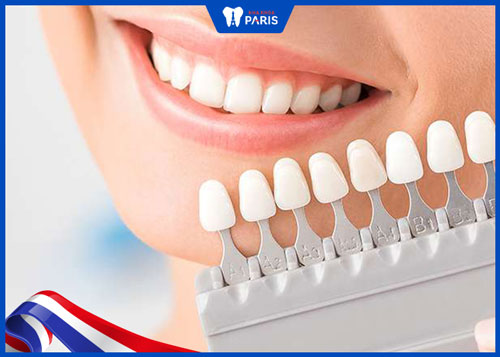 Chọn màu răng sứ