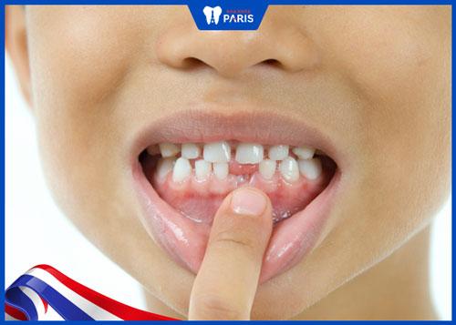 Dùng tay đẩy răng để niềng răng tại nhà