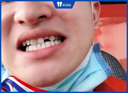 gãy răng có ảnh hưởng gì không