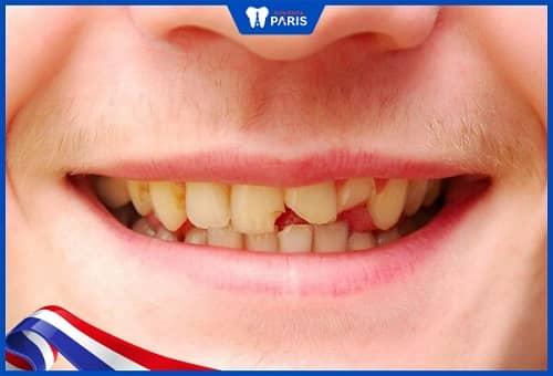 gãy răng có mọc lại không
