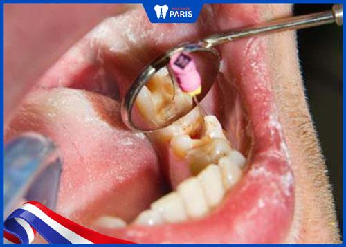 Lấy tủy răng làm răng yếu đi